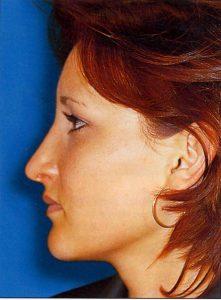 Eine Nasenverkleinerung kann Sinn machen.