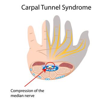 Anatomie des Karpaltunnelsyndroms: durch Druck auf den Mittelnerven werden Daumen und die zwei benachbarten Finger taub und gefühllos. © Alila Medical Media @fotolia