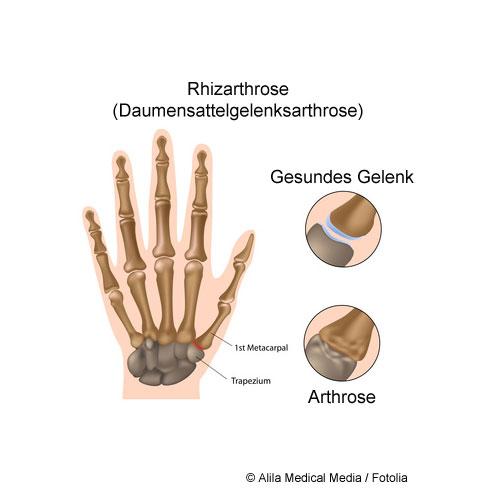 Die Rhizarthrose (Daumensattelgelenksarthrose) betrifft das Grundgelenk des Daumens. Starke Beanspruchung oder Unfälle (Traumata) können den Gelenkknorpel zerstören. Das Daumensattelgrundgelenk wird schmerzhaft und verschleißt. Die Funktion der Hand im Alltag ist dann stark eingeschränkt.