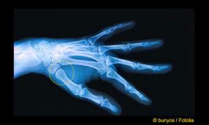 Röntgenuntersuchung des Daumensattelgelenks: Bei einer Arthrose ist nur noch ein sehr schmaler oder gar kein Gelenkspalt des Daumensattelgrundgelenks zu sehen. In diesem Röntgenbild liegt ein ausreichender Gelenkspalt vor (gelber Kreis). Bei Rhizarthrose ist außerdem das Daumensattelgelenk verformt. Am Rand des Gelenks bilden sich Osteophyten (Knochensporne), die das Gelenk zusätzlich aufrauen und den Knorpelverschleiß beschleunigen. © bunyos / Fotolia