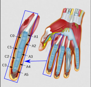 """Schnappfinger (Tendovaginitis stenosans) ist die Blockade der Fingersehne durch Knötchenbildung. Die Knötchen können nur nach hohem Kraftaufwand über die festen, horizontal verlaufenden Ringbänder gleiten. Die Ringbänder """"fesseln"""" die Fingersehnen in die Gelenke, so dass sie nicht bogensehnenartig herausstehen. Meistens ist das erste von 5 Ringbändern des Fingers (in der Grafik: A1) von der Tendovaginitis stenosans betroffen. Die Knötchenbildung wird also immer ausgelöst durch eine entzündliche Einengung der Sehnenscheiden der Fingerbeugesehnen. © anka friedrichs @ wikimedia"""