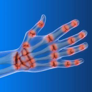 Arthrose im Handgelenk, Daumensattelgelenk und in den Fingergelenken