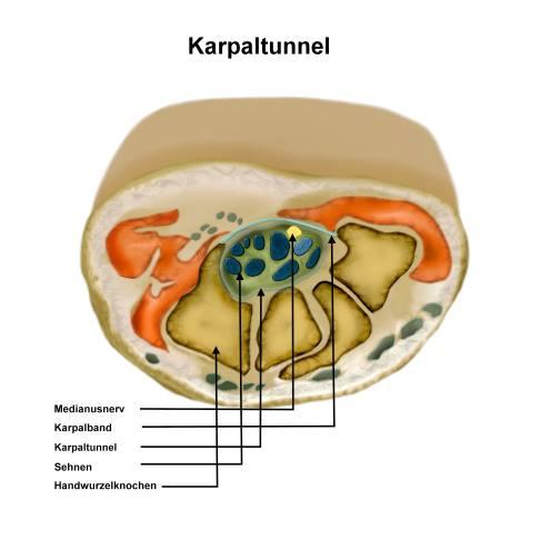 Anatomie des Karpaltunnels mit Knochen, Sehnen und Karpalband