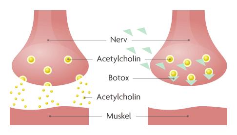 Abbildung Nervenzelle mit und ohne blockierendes Botulinumtoxin